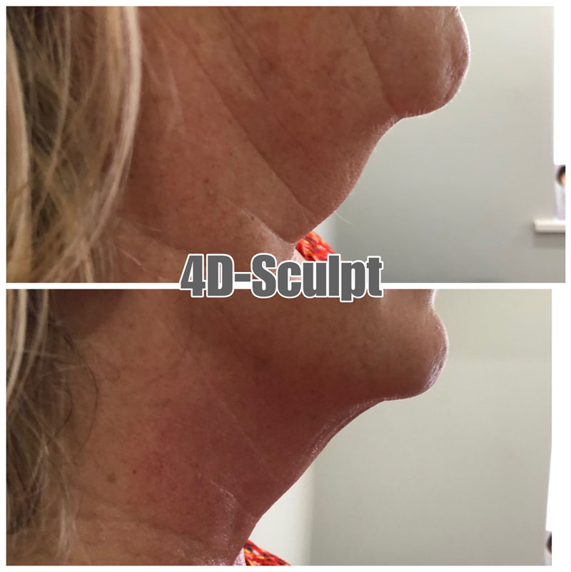 4D Sculpt Results